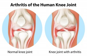 Singapore Knee Arthritis Clinic