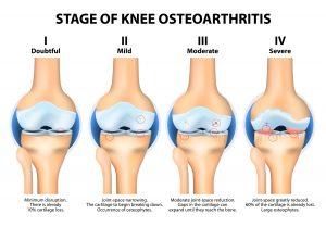 Osteoarthritis Clinic Singapore