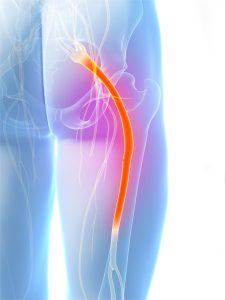 Sciatica Pain Singapore Clinic