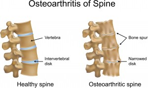 Spondylosis Treatments