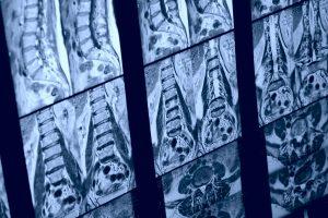 Lumbar Spine Back MRI Scan