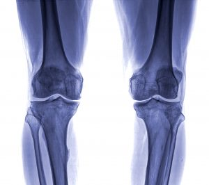 Knee X-ray Singapore Clinic