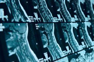 Cervical Spine Neck MRI Scan